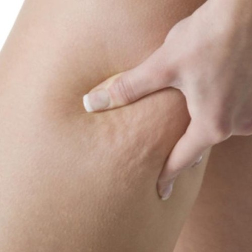 close up on the leg of a girl showing her cellulite